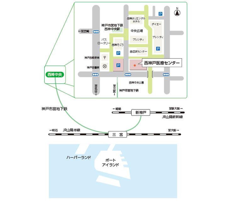 交通アクセスの画像です。三宮より地下鉄で西神中央駅へ。下車後、南へ徒歩5分です。西神そごうと西区民センターが隣接しており、西神中央公園の北側です。