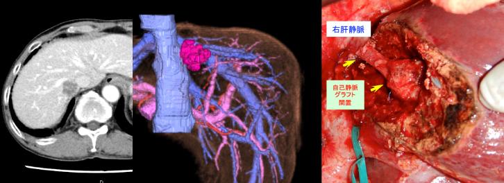 肝部分切除と肝静脈再建術を施行した症例