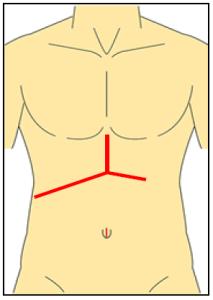 従来の開腹肝切除術創の画像