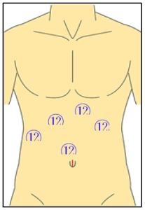 腹腔鏡下肝切除術創の画像