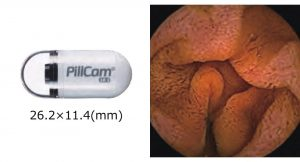図5 小腸カプセル内視鏡