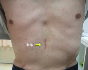 図5:単孔式剣状突起下胸腔鏡縦隔腫瘍手術