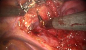 図6:ロボット拡大胸腺摘出術
