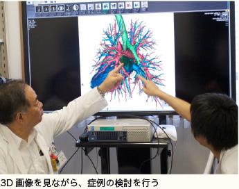 3D画像を見ながら、症例の検討を行う