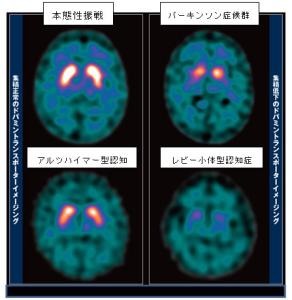 本態性振戦 パーキンソン症候群 アルツハイマー型認知 レビー小体型認知症