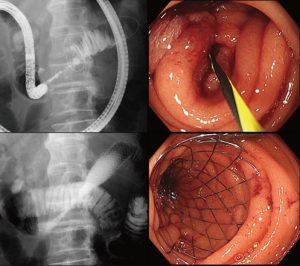 図4 消化管(十二指腸)ステント